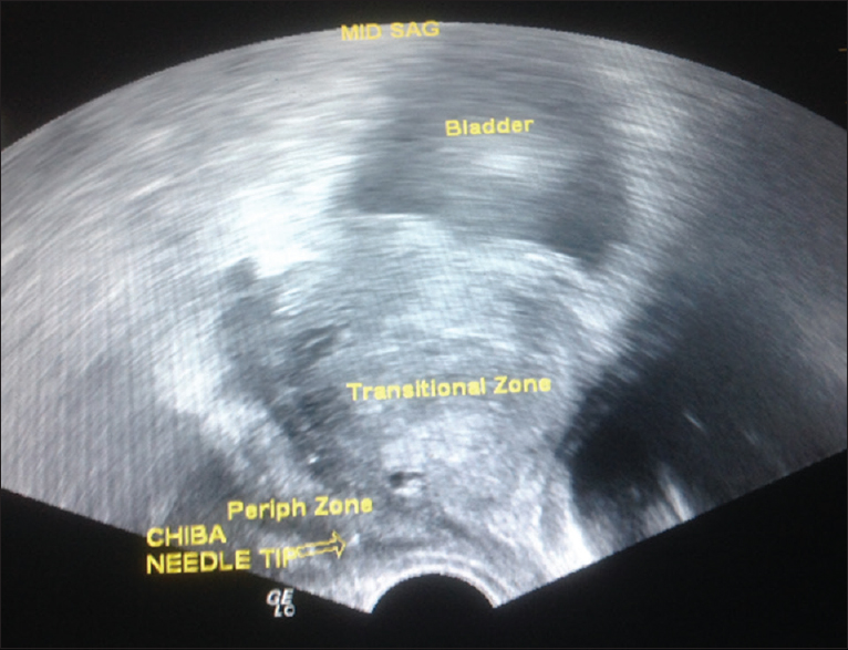 Combined intrarectal lidocaine gel and periprostatic nerve