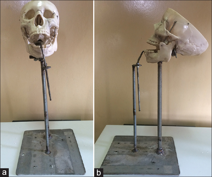 Figure 2: (a) Front view of the adaptable skull stand with a skull mounted on it and (b) side view of the adaptable skull stand with a skull mounted on it