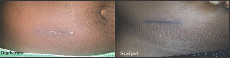 Figure 3: Surgical scars from diathermy and scalpel skin incisions
