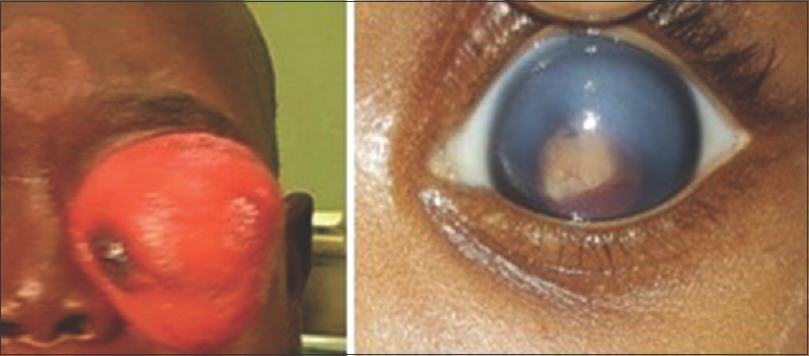 Figure 2: Proptosis and buphthalmos in advanced retinoblastoma