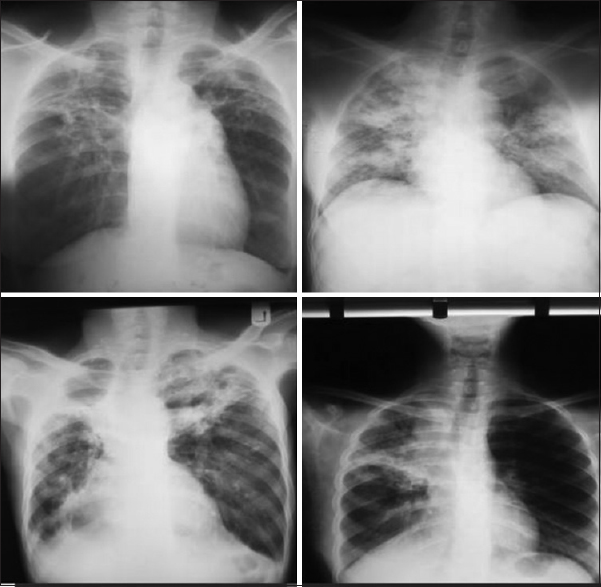 Figure 3: Chest radiographs depicting extensive lung parenchymal damage following microbiological cure for pulmonary tuberculosis